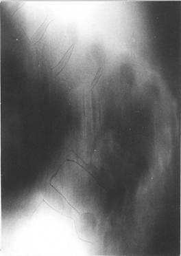 Боковая рентгенограмма грудопоясничного отдела позвоночника