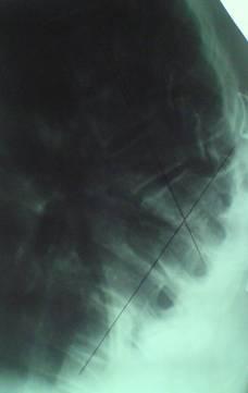 Рентгенограмма грудопоясничного отдела позвоночника ребенка
