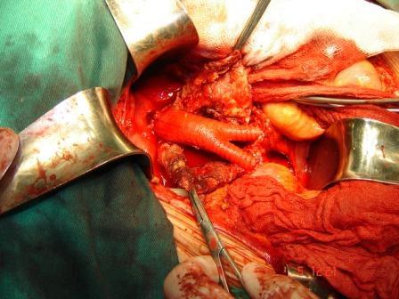 Бифуркационный протез Cooley 2