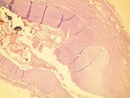 """Стенка венозного кровеносного сосуда непосредственно после лазерного въздействия: некротические изменения в эндотелии; неравномерное, отчасти """"колбовидное"""" утолщение, дегенеративные /базофильная дегенерация/ и некротические повреждения в коллагеновых структурах интимы и медии, с разрыхлением их клеток, фибрин, эритроциты и тромбоциты в просвете. Окр. с HE, увел. х 40,0"""
