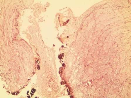 Фрагмент венозного сосуда с дезорганизацией и дегенеративными изменениями в эластических и коллагеновых волокнах; карбонизация эндотелия. Окр. по Вайгерту для эластических структур; увеличение x 40,0