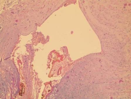 Окраска по van Gieson для коллагеновой соеденительной ткани показывает наличие дегенерации и фибриноидного некроза в коллагеновых волокнах интимы и очасти в медии /желтого цвета/ , клетки интимы и отчасти в верхних слоях медии с неправильной ориентацией, вакуолизация в цитоплазме и измененная форма ядра. увел. х 80,0